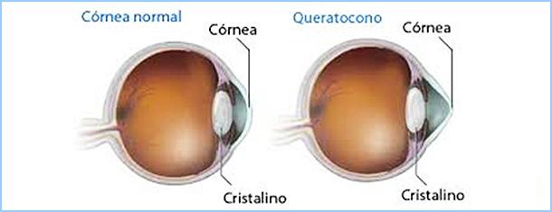 El queratocono es una enfermedad no inflamatoria de la córnea que provoca un adelgazamiento progresivo del tejido de la córnea central. En estadios avanzados se produce una deformidad significativa de la… Me Interesa