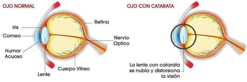 catarata_imagen