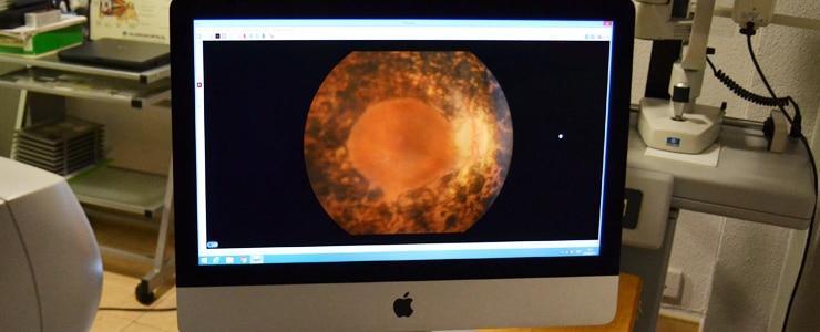 La retinosis pigmentaria provoca una degeneración lenta y progresiva de la retina.   Entre los síntomas de la retinosis destaca la disminución de la visión nocturna o en condiciones de baja… Me Interesa