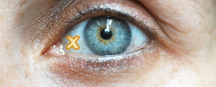 A veces no somos conscientes de la exposición que tienen nuestros ojos ante el sol. Si no se protege adecuadamente puede provocar lesiones a largo plazo como en el caso… Me Interesa