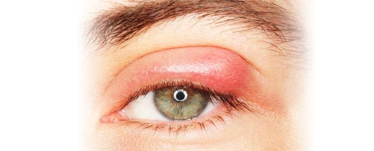 El chalazión es una lesión producida en el párpado. Esta se debe a la inflamación o infección de las glándulas de Meibomio (glándulas sebáceas que producen compuestos de la lágrima)… Me Interesa