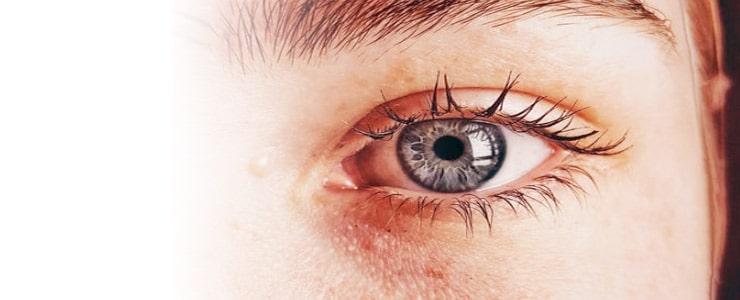 El ojo rojo es una manifestación que puede ser producida por muchas afecciones y deben ser observadas por un especialista. Una de estas causas más común en verano es la irritativa… Me Interesa