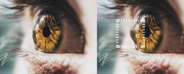 El queratocono es una ectasia cornal, es decir, una enfermedad degenerativa que provoca mala visión de forma progresiva. Se explica como una alteración ocular en la que se produce un adelgazamiento… Me Interesa